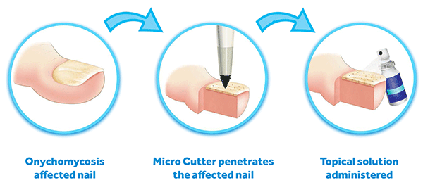 Micro cutter penetrates nail, topical solution administered
